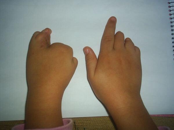 Meliha Melek´in de Parmakları Olacak