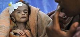 Adak, Akika, Şükür Kurbanlarınızı Somali'de Keselim