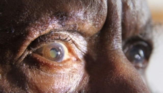 The Cataract Project